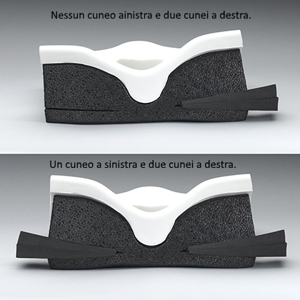 If needed, posture can be adjusted through the use of Ride CAM wedges. They can be positioned assymetrically (shown at top), with up to two wedges being inserted on each side, then trimmed. CAM wedges can also be positioned symmetrically (bottom), with up to two wedges being inserted on each side. (Rear view)